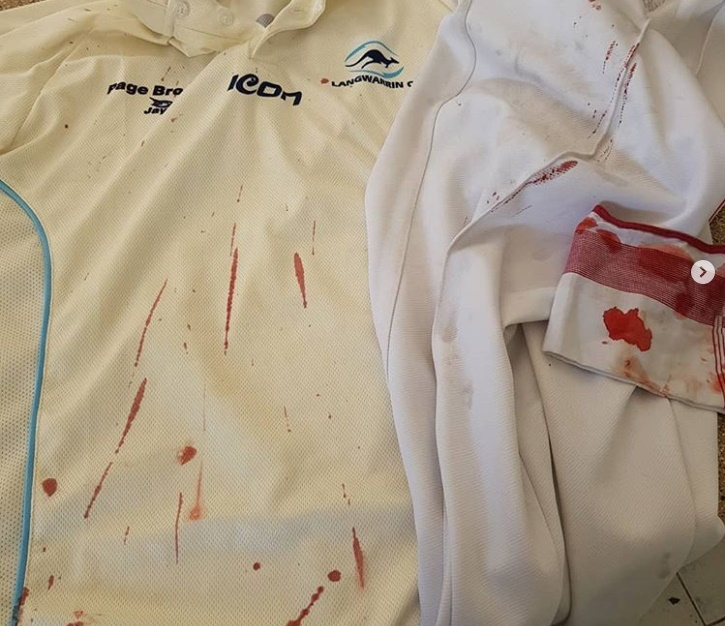 لکه های خون چند روش ساده و کاربردی برای از بین بردن انواع لکه ها از روی لباس و پارچه