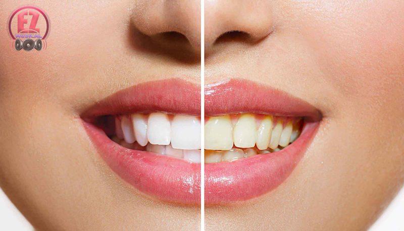 نکاتی در مورد سفید کردن دندانها